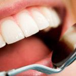 Интересные факты о стоматологии